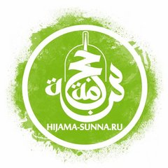 Хиджама Сунна